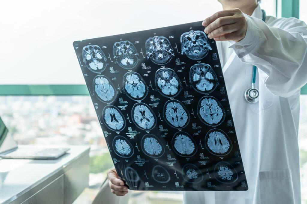 Nashville-brain-injury-specialist-examining-brain-images