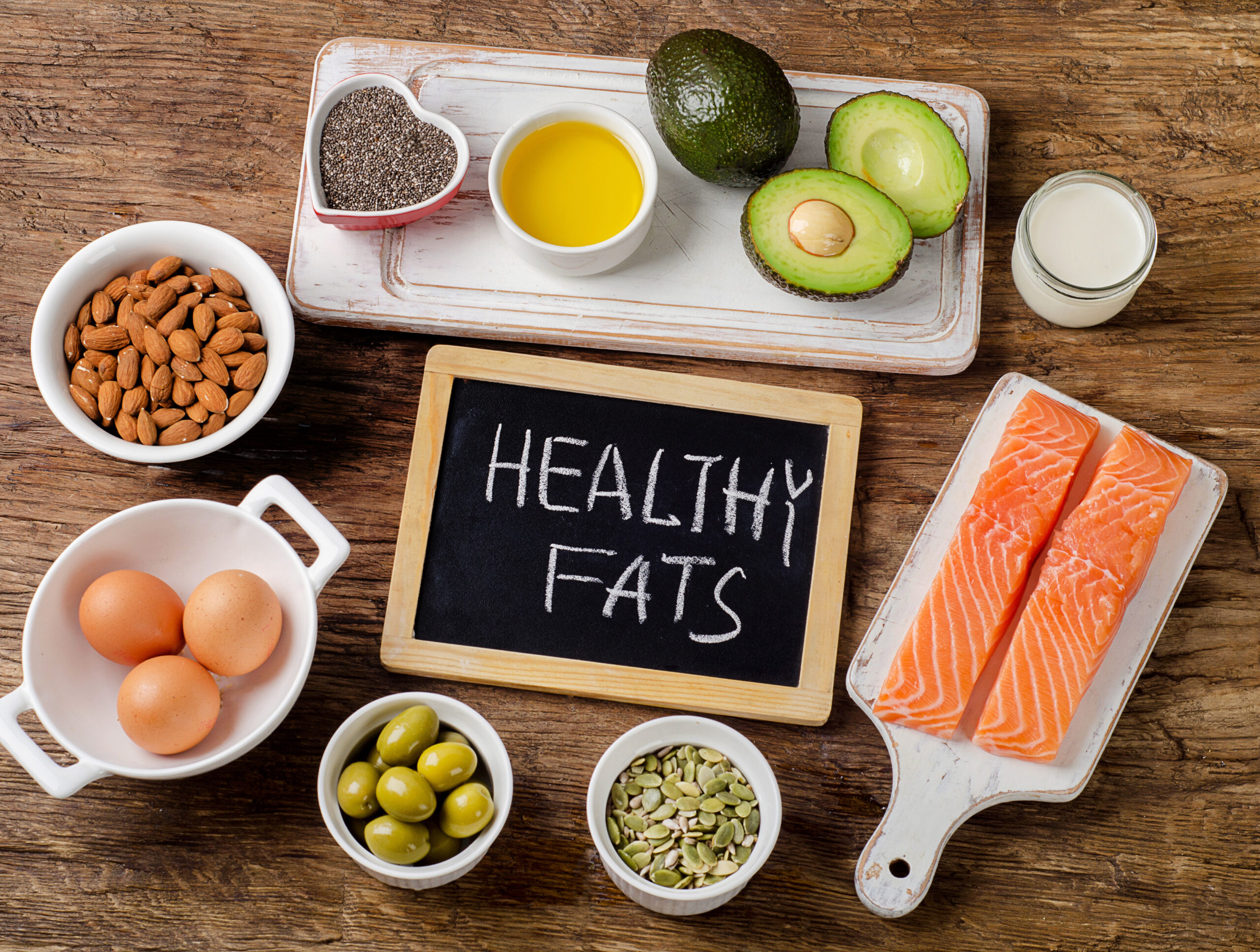 Selection-of-healthy-fat-sources-on-wooden-background